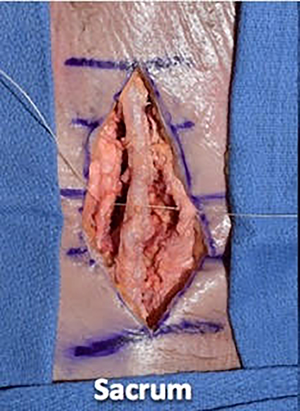 We-then-proceeded-with-wound-closure,-first-using-0-vicryl-suture-to-tightly-reapproximate-the-fascial-layer-using-a-simple-interrupted-technique