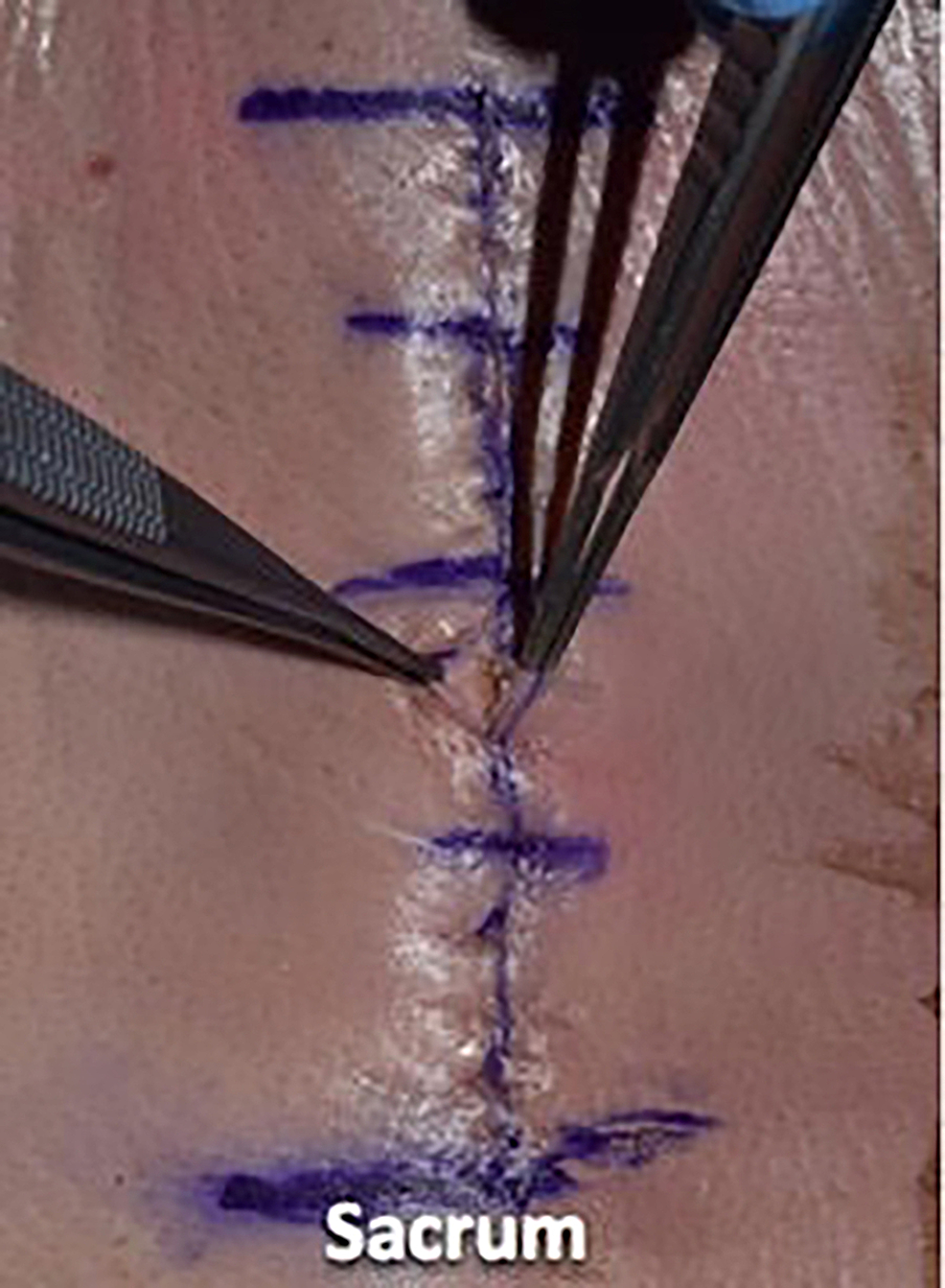 Illustrating-the-inverted-dermal-closure