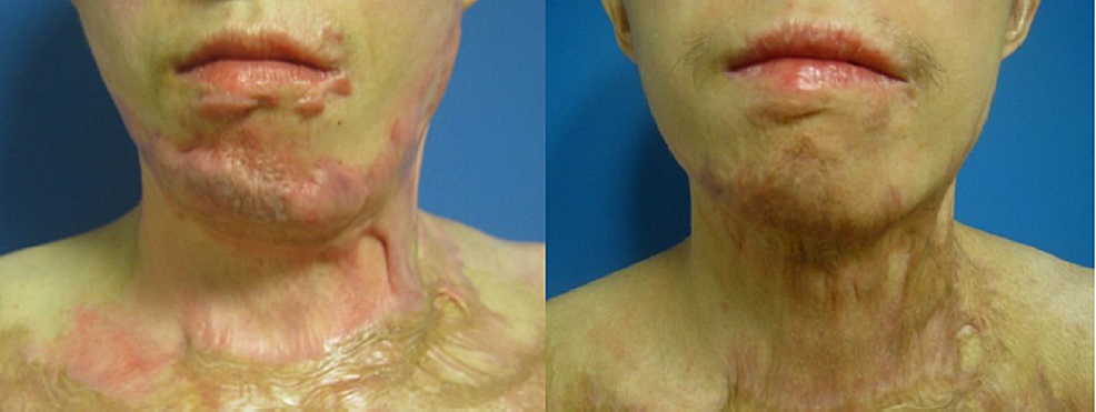 Case-1,-frontal-shot,-preoperatively-(left)-and-one-year-postoperatively-after-needling-(right).-Areas-treated:-face-perilabial,-chin,-neck