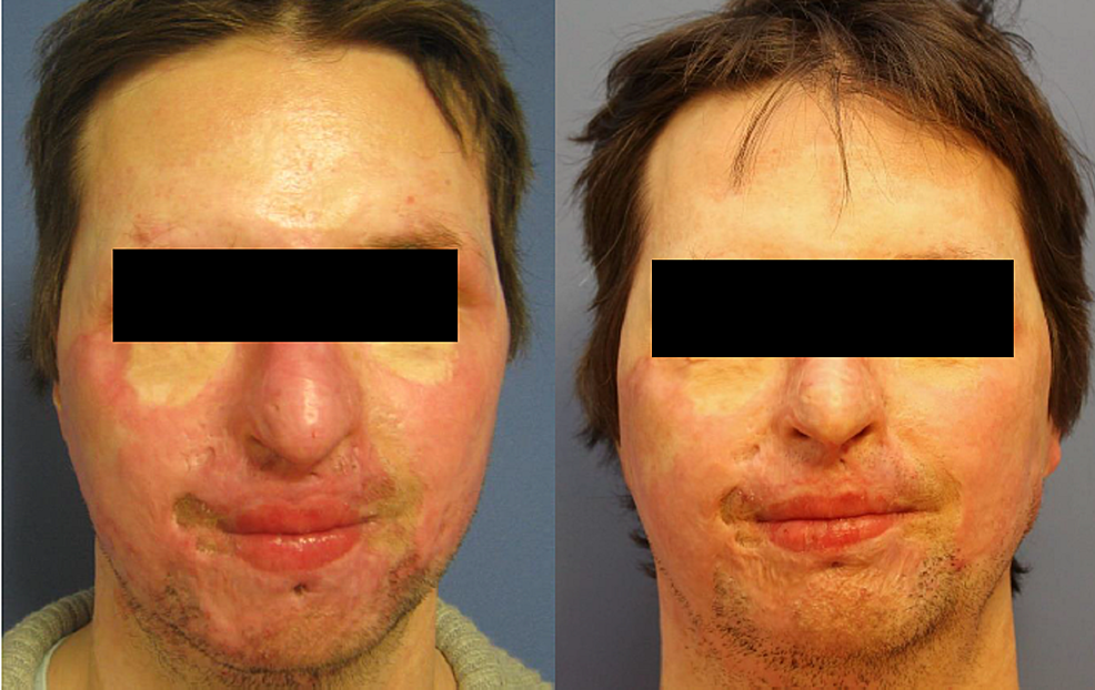 Case-2,-frontal-shot,-preoperatively-(left)-and-one-year-postoperatively-after-needling-(right).-Areas-treated:-entire-face