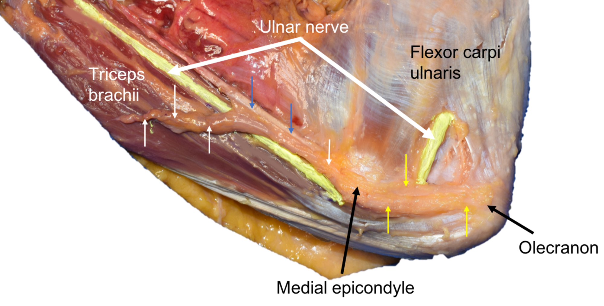 Cureus Variant Of The Anconeus Epitrochlearis Muscle A Case Report