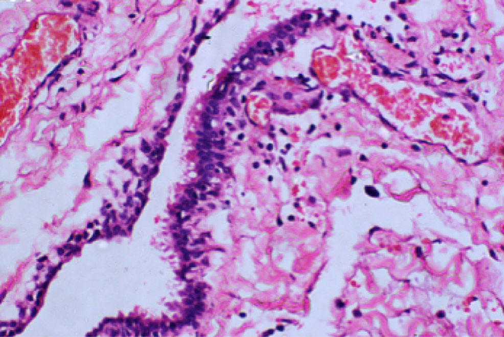 Histological-section-of-spinal-neurenteric-cysts-noting-the-typical-epithelial-lining-seen-with-these-pathological-entities.