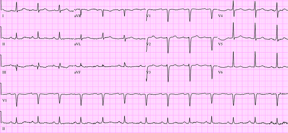 Patient's-initial-twelve-lead-electrocardiogram-in-the-emergency-room-after-out-of-hospital-cardiac-arrest.-The-tracing-revealed-sinus-rhythm-with-age-undetermined-septal-infarct.