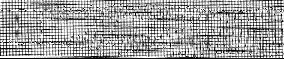 Patient's-telemetry-strip-on-her-witnessed-cardiac-arrest-after-she-neurologically-recovered-from-targeted-temperature-management.-The-tracing-revealed-ventricular-fibrillation-and-ventricular-tachycardia.