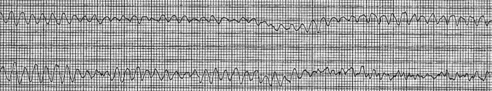 Patient's-telemetry-strip-during-her-subsequent-cardiac-arrest.-The-tracing-revealed-ventricular-fibrillation.