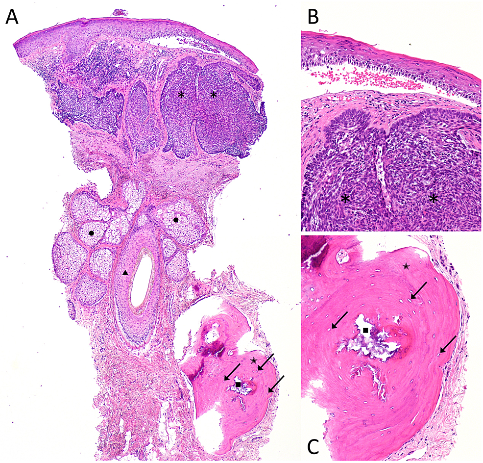 Pathologic-features-of-basal-cell-carcinoma-with-osteoma-cutis-from-a-punch-biopsy-of-the-chin