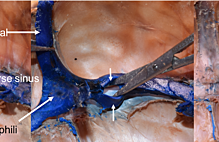Article box c6776d009b2911e8b0cb156cfe93c242 new figure 1 fenestrated transverse sinus