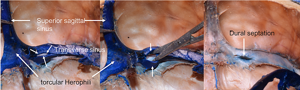Left:-transverse-sinus-with-proximal-fenestration-(short-arrows);-Middle:-widening-of-fenestration-(arrows)-with-scissors;-Right:-Following-removal/retraction-of-blue-latex-from-within-the-left-transverse-sinus,-note-the-intraluminal-dural-septation.