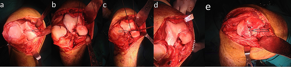 Intraoperative-view-of-the-patient