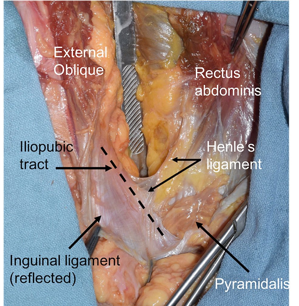 Cureus Henles Ligament A Comprehensive Review Of Its Anatomy And