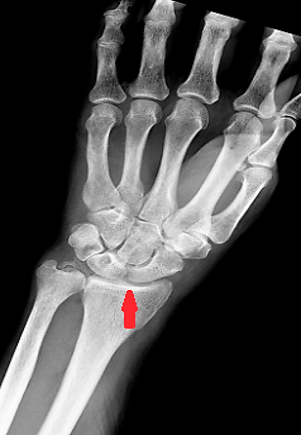 Chondrocalcinosis-of-radiocarpal-joint.