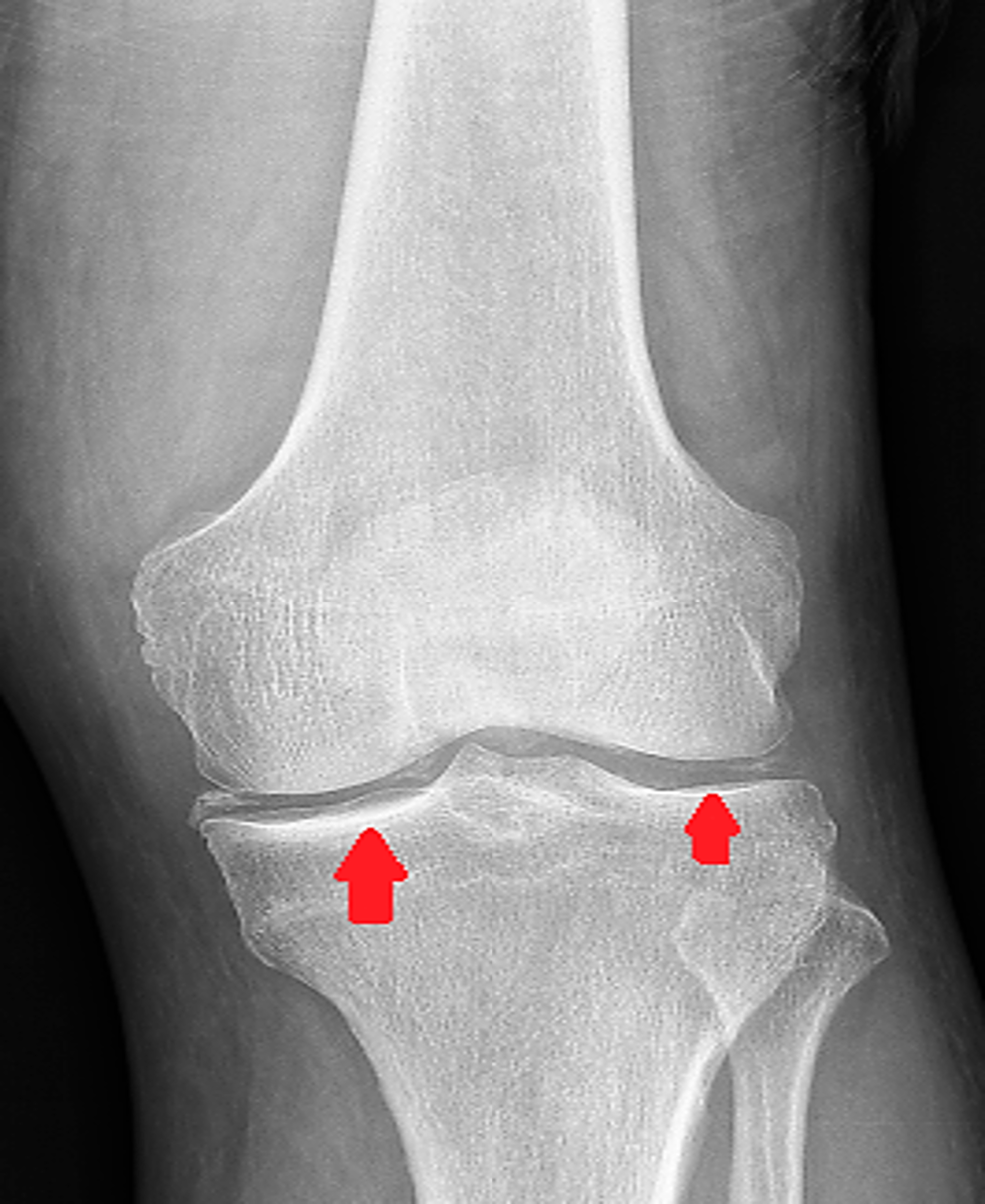 Chondrocalcinosis-of-knee-joint.