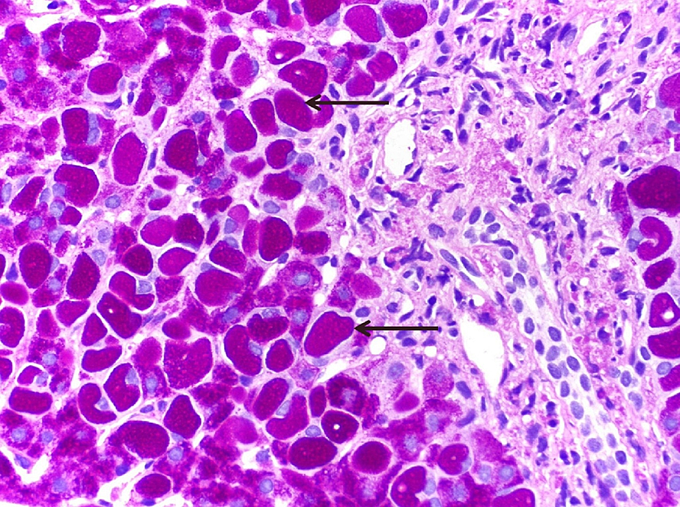 Photomicrograph-of-histopathological-analysis-of-the-liver-biopsy-specimen-showing-polyglucosan-inclusions-(Lafora-bodies)-in-the-hepatocytes-that-are-resistant-to-diastase-(Periodic-acid–Schiff–diastase-staining;-400x).