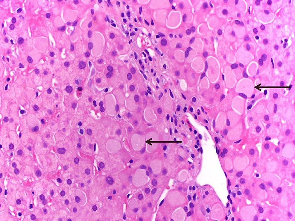 Histpathological-examination-of-the-liver-biopsy-showing-periportal-hepatocytes-with-large-ground-glass-inclusions,-consistent-with-Lafora-bodies.-(H&E;-400x).