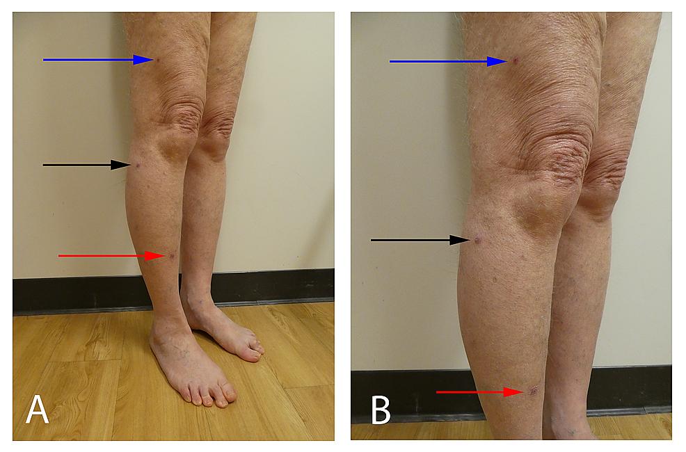 Sporotrichoid-keratoacanthomas-on-the-right-leg