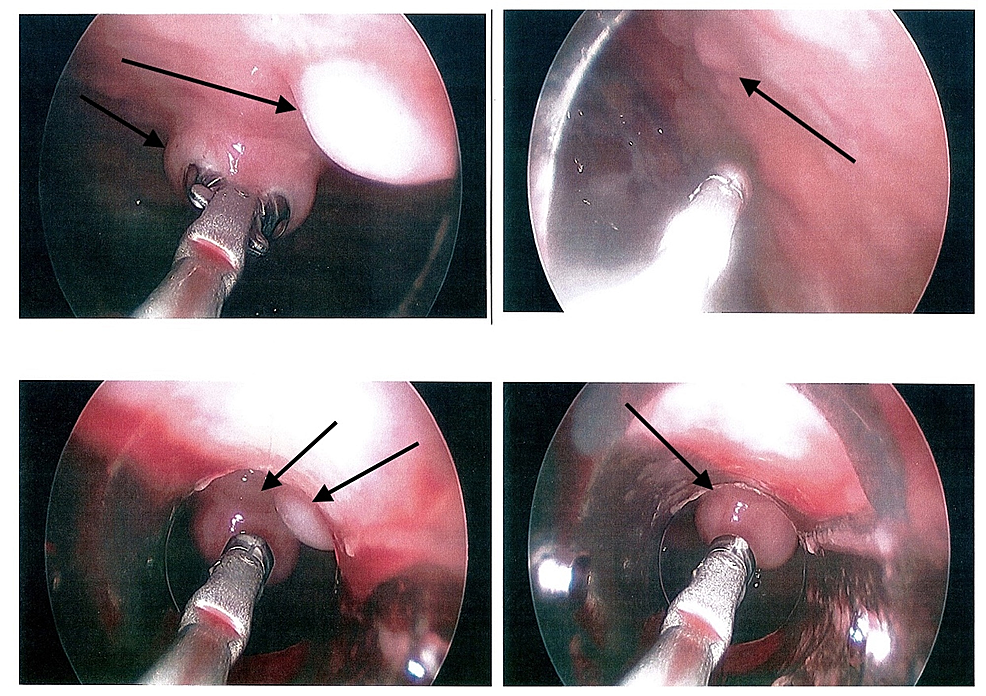 Photographs-of-the-pleural-space-obtained-during-thoracoscopy-show-numerous-nodules-studding-the-pleura-(indicated-by-arrows),-suggestive-of-metastatic-disease.