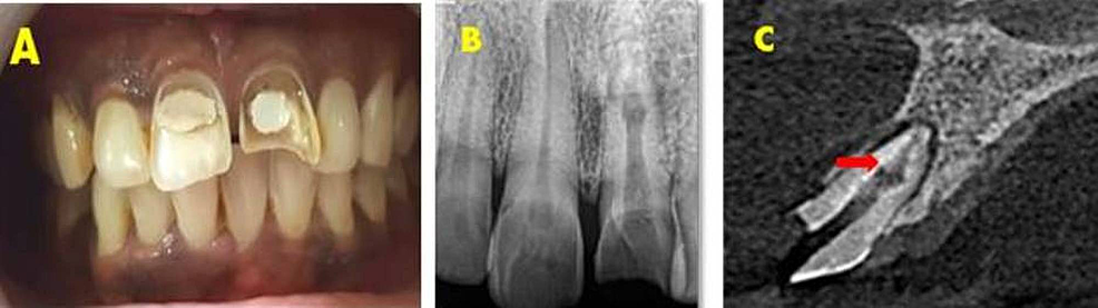 Preoperative-assessment-for-patient-with-inflammatory-non-perforating-internal-root-resorption.