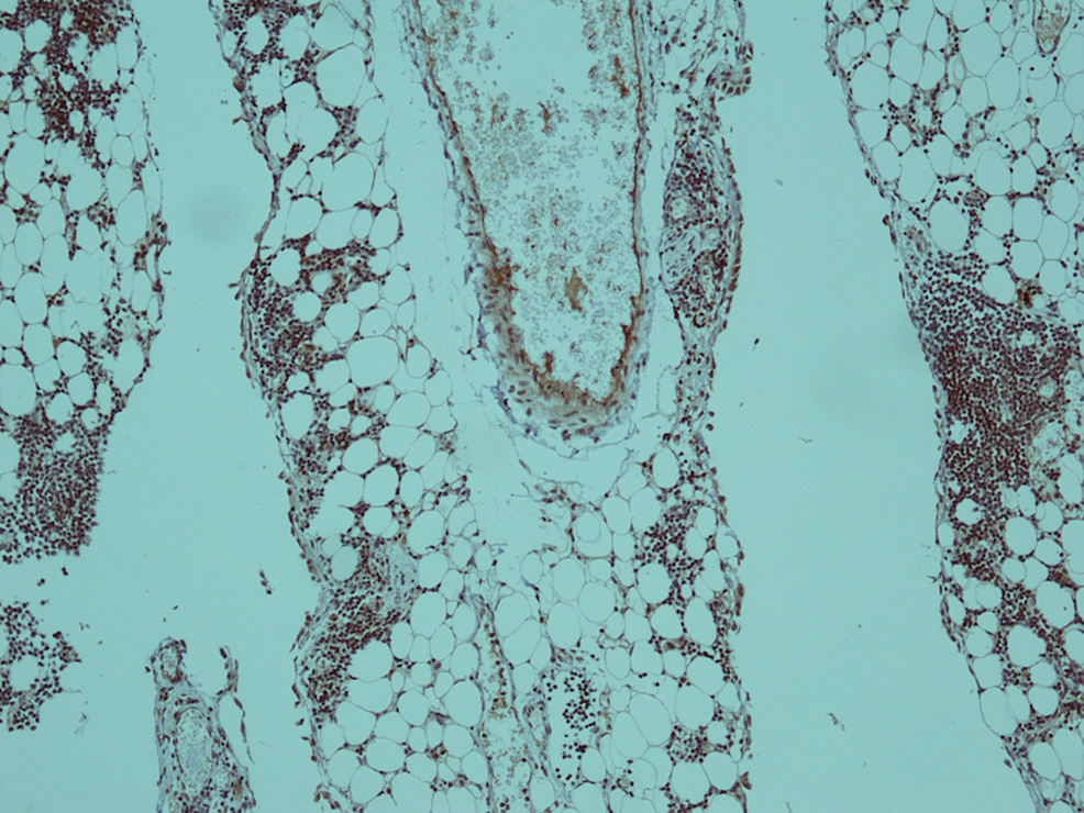 Immunohistochemical-stain-for-Tdt-showed-nuclear-positivity-in-blast-cells-(x-10).
