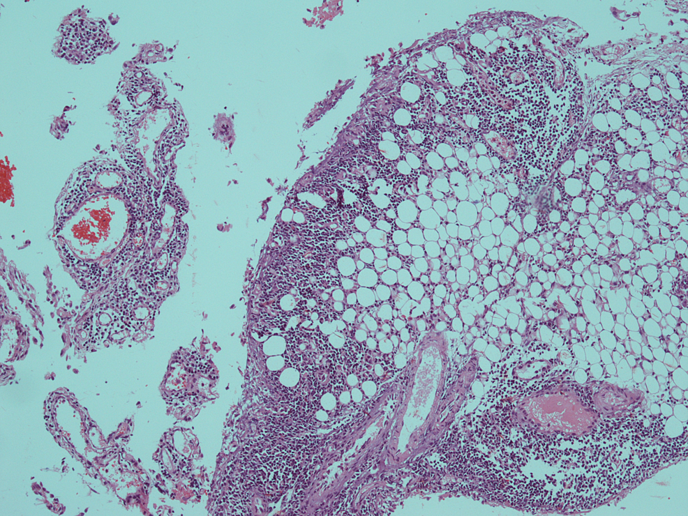 Haematoxylin-and-eosin-(H&E)-section-of-omental-biopsy-showed-infiltration-of-fatty-tissue-by-neoplastic-blast-cells-(×-10).