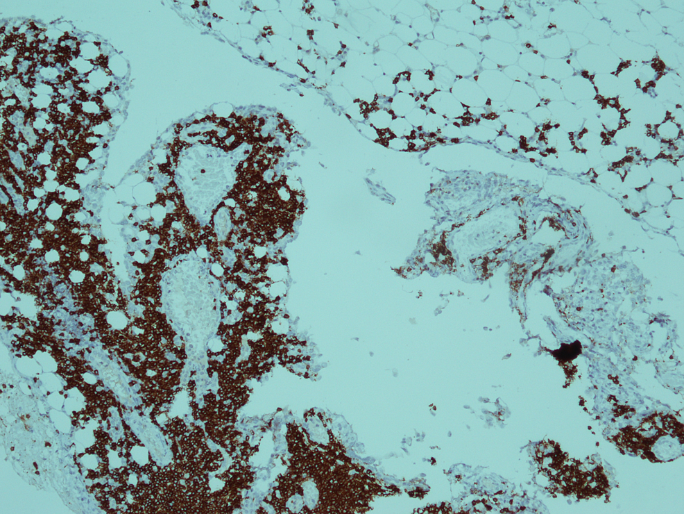 Immunohistochemical-stain-for-CD20-showed-membranous-positivity-in-blast-cells-(x-40).