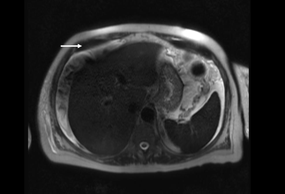 Abdominal-MRI