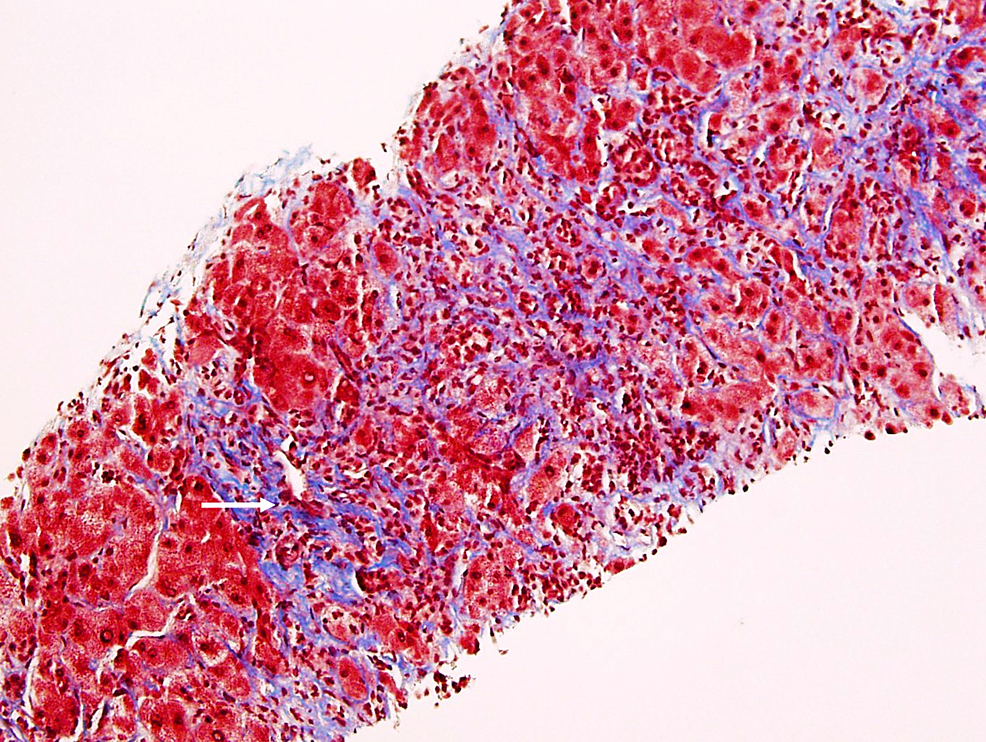 Liver-Biopsy,-Trichrome-Stain