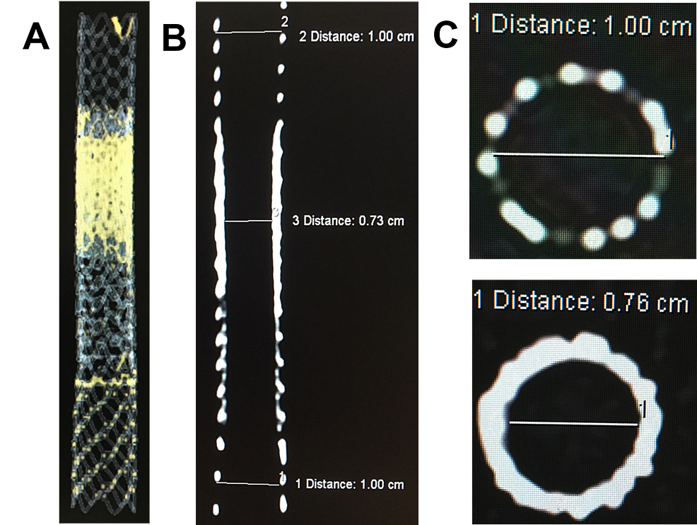 A)-3D-CT-image-of-the-Viatorr-and-Viabahn-stents-laminated.-B)-Coronal-CT-image-showing-the-smooth-hourglass-tapering-from-the-onion-skin-technique.-C)-Shows-the-axial-CT-image-of-a-10-mm-Viatorr-stent-(top)-and-axial-CT-image-through-onion-skin-layers-of-Viabahn-stent-grafts-with-a-narrowing-of-the-lumen-to-0.76-mm-(bottom).