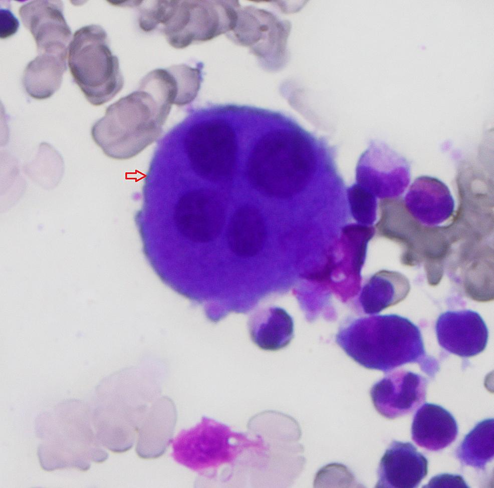 Bone-marrow-aspirant;-arrow-indicates-dysplastic-megakaryocyte.