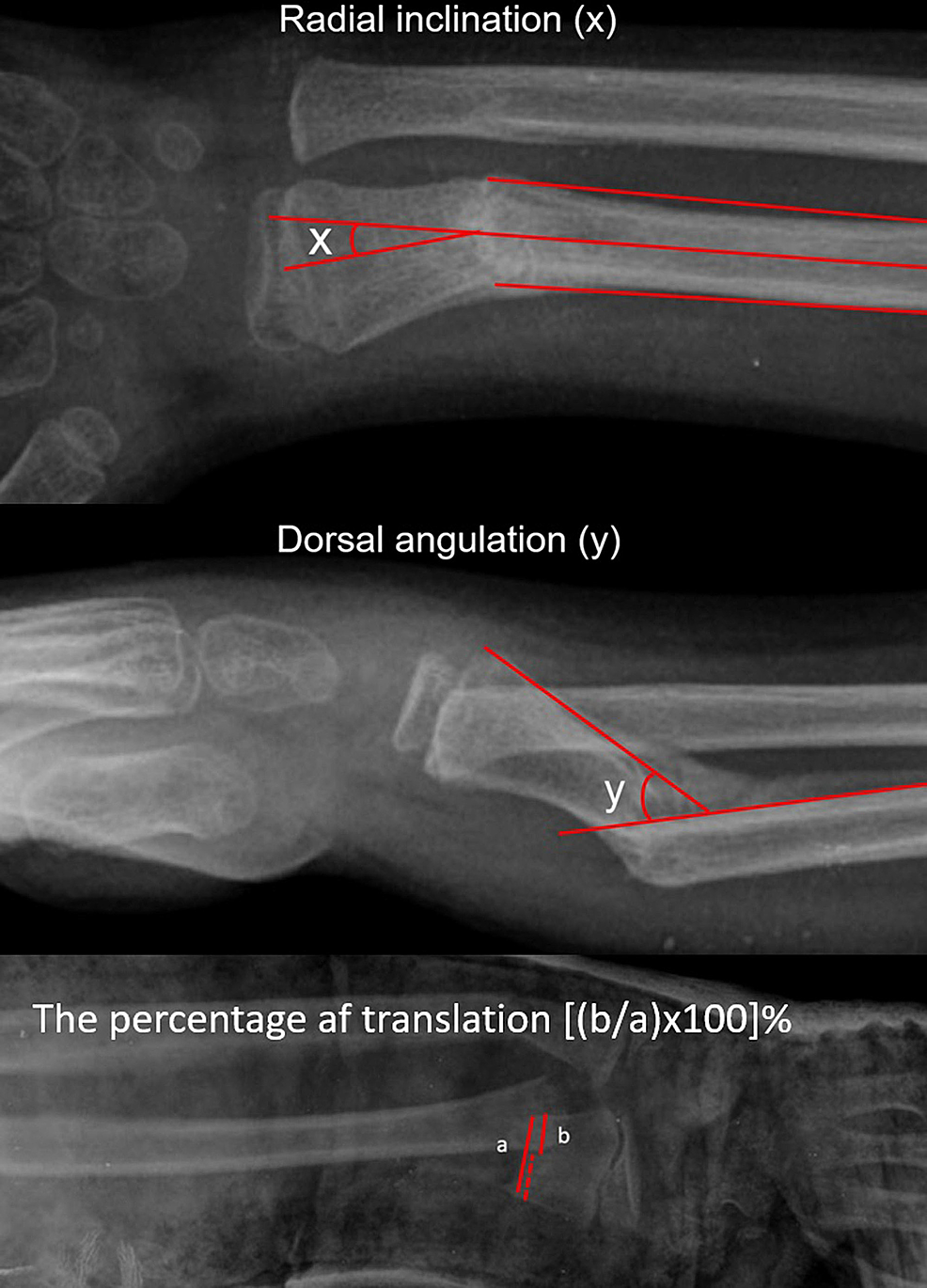 Figures-demonstrating-the-method-of-measurements-of-angulations-and-translation.-(a)-Measurement-of-radial-inclination,-(b)-dorsal-angulation-and-(c)-the-percentage-of-translation.