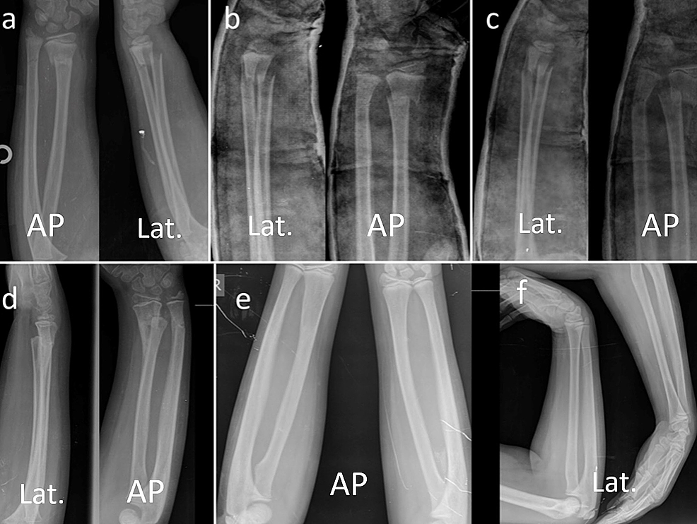 Case-#1.-Serial-radiographic-examination-of-seven-year-old-girl-with-distal-radial-metaphyseal-fracture.-(a)-Initial-radiograph-on-admission.-(b)-Immediate-closed-reduction,-the-angulations-were-in-acceptable-range-in-both-planes.-(c)-Re-displacement-in-cast.-(d)-Radiographs-after-the-cast-removal.-(e,f)-Final-comparison-radiographs-with-the-un-injured-side-at-30th-month-showing-full-remodeling-and-normal-alignment.
