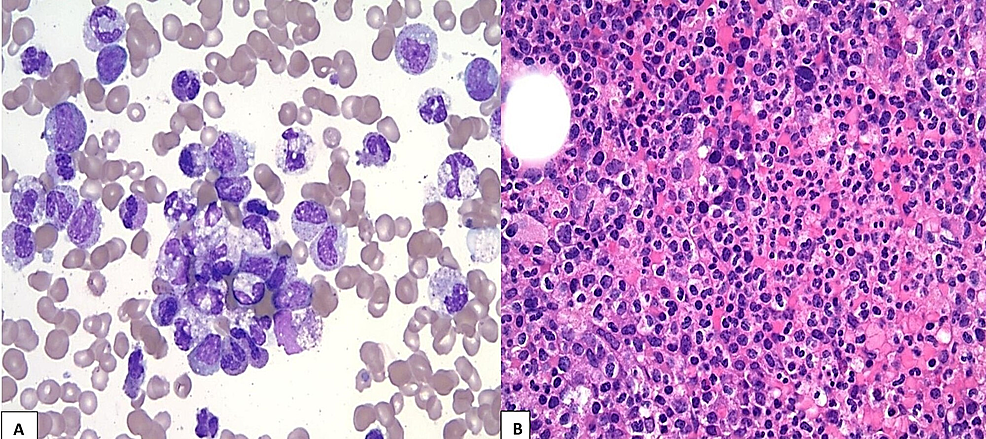 Histology-of-bone-marrow-biopsy
