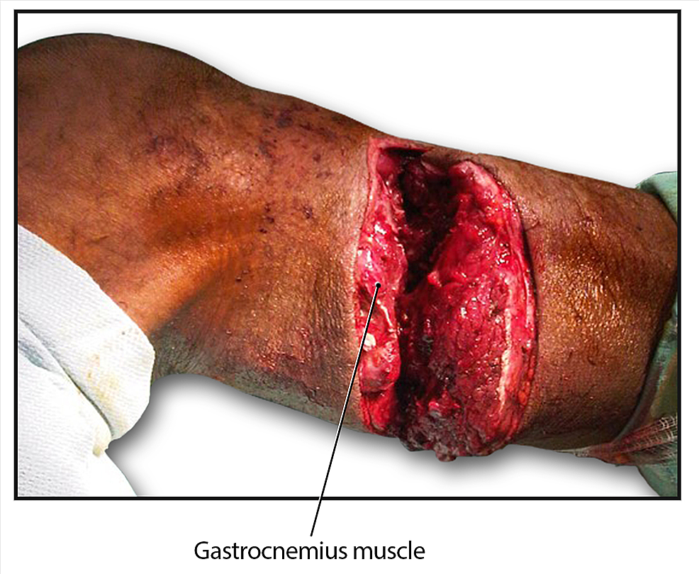Partial-amputation-of-the-patient's-right-leg-secondary-to-a-traumatic-injury.