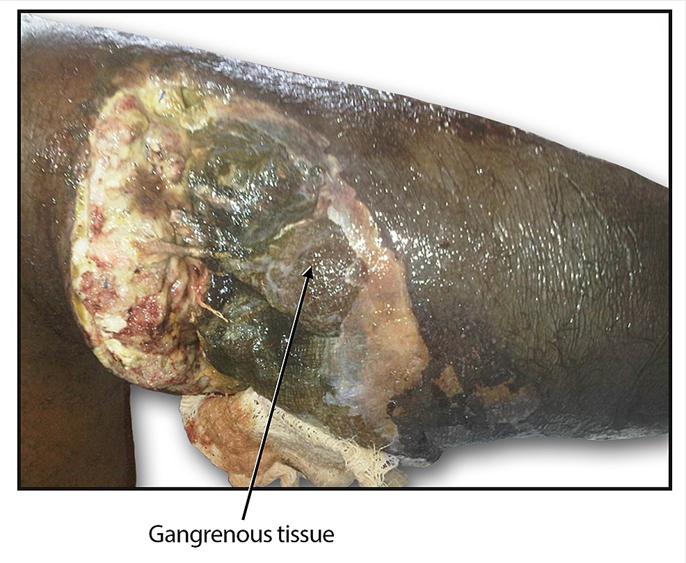 Postoperative-complication-of-gangrene-of-the-right-leg.