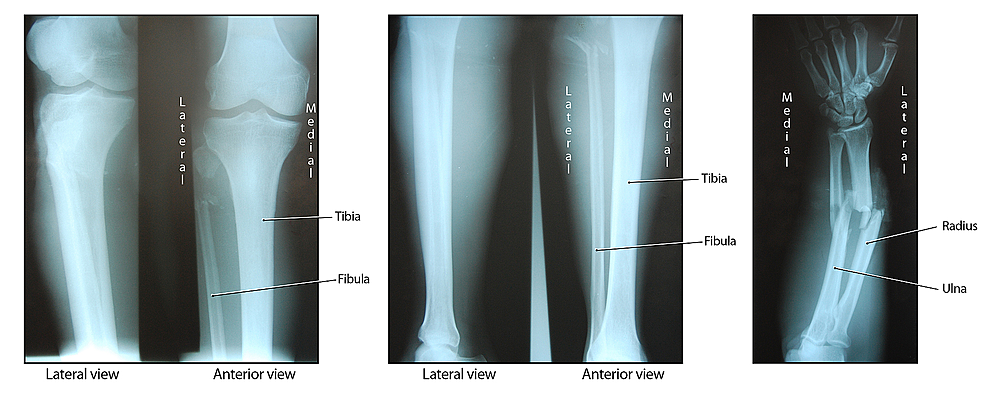 Radiographic-images-of-the-patient's-polytraumatic-presentation.