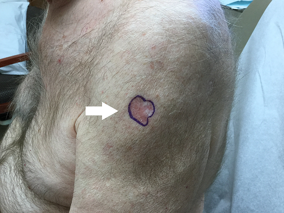 Metatypical-basal-cell-carcinoma-located-on-the-left-lateral-shoulder.
