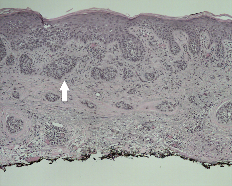 Histology-of-metatypical-basal-cell-carcinoma.