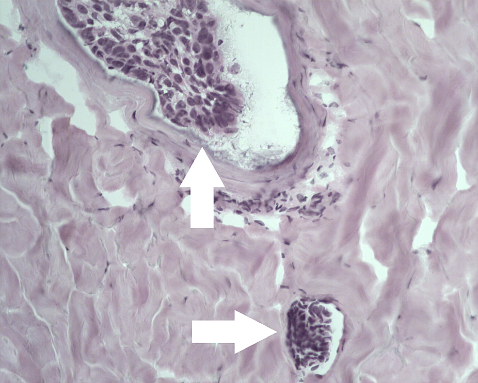 Metatypical-basal-cell-carcinoma-with-intravascular-invasion.