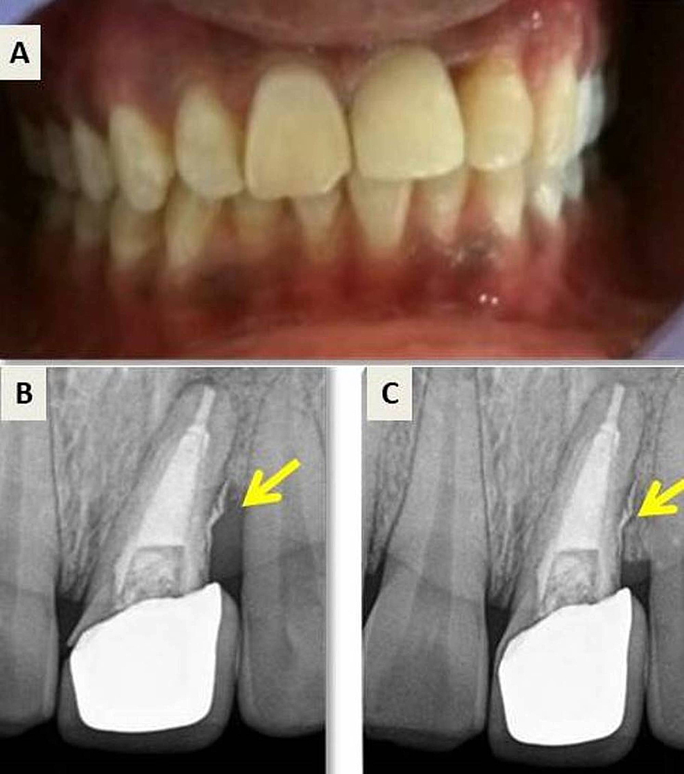 Postoperative-photograph-and-follow-up-radiograph.