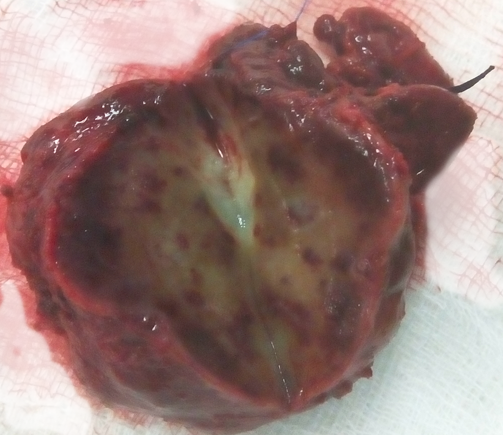 Gross-morphology-of-the-liver-specimen.-In-the-center,-a-light-yellow-region-is-noted.