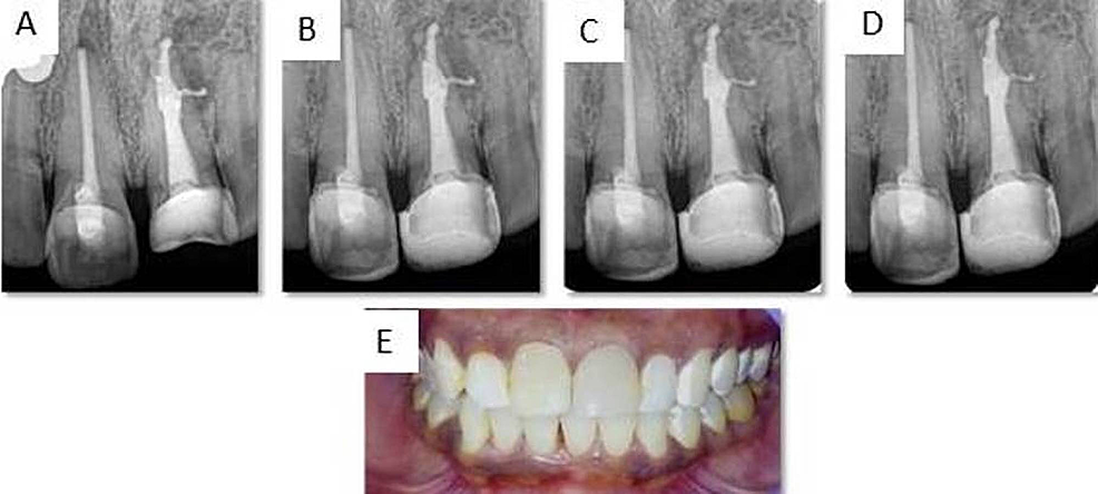 Postoperative-radiograph-and-photograph-of-tooth-11-and-21.