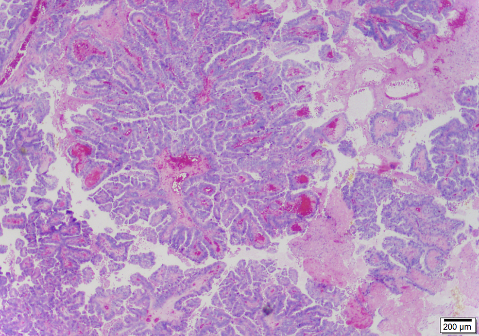 Papillary-fronds-compose-the-gallbladder-carcinoma-(25x)