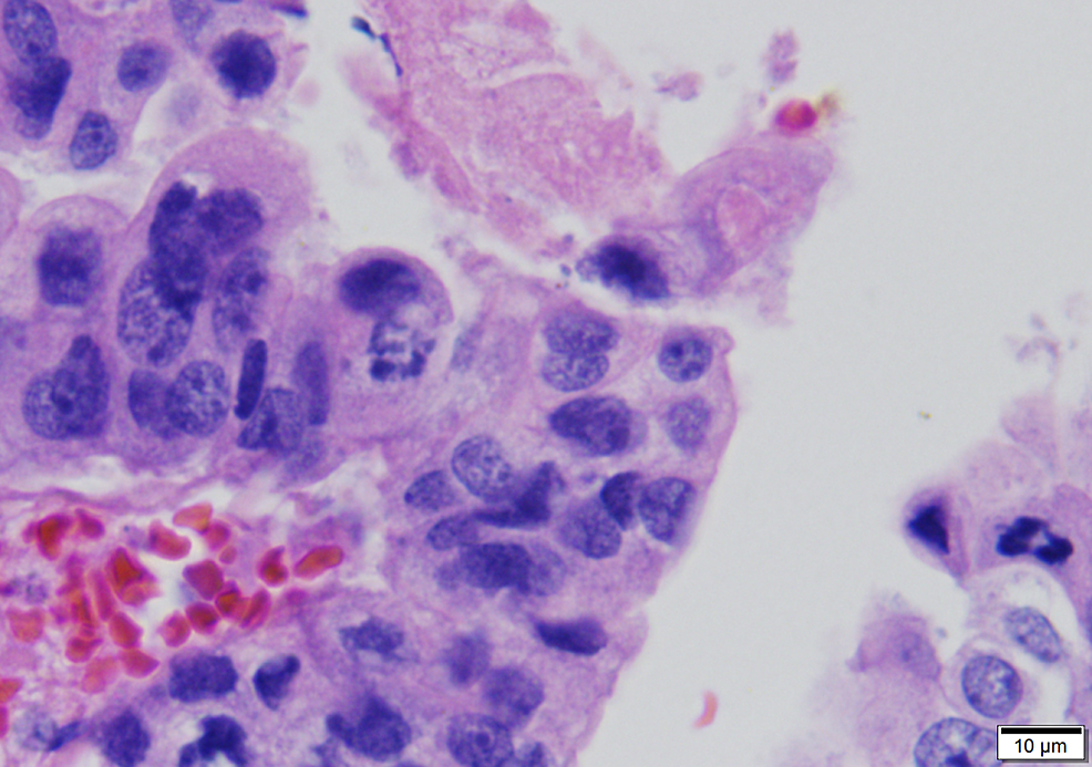 Enlarged,-variably-sized-and-shaped-lining-nuclei-showing-loss-of-polarity-and-aberrant-mitoses-(630x)