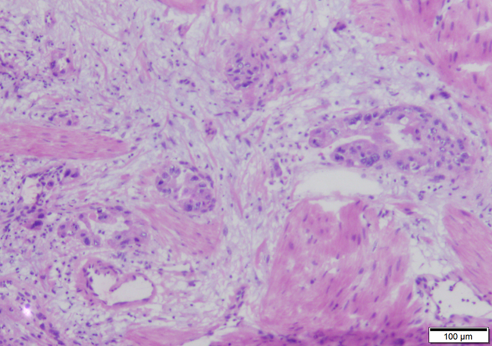 Cancerous-glands-invade-into-the-muscularis-propria-of-the-gallbladder-(100x)