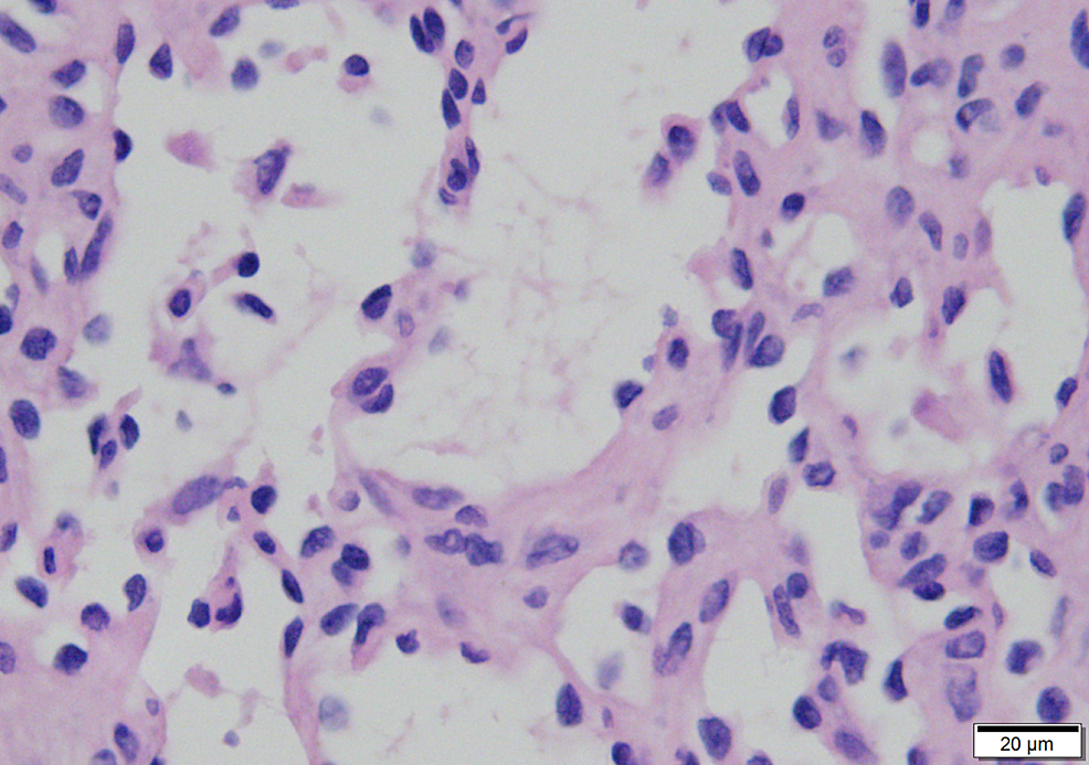 Nuclei-showing-mild-atypia-with-occasional-hobnailing,-but-mitoses-are-lacking-(400x)