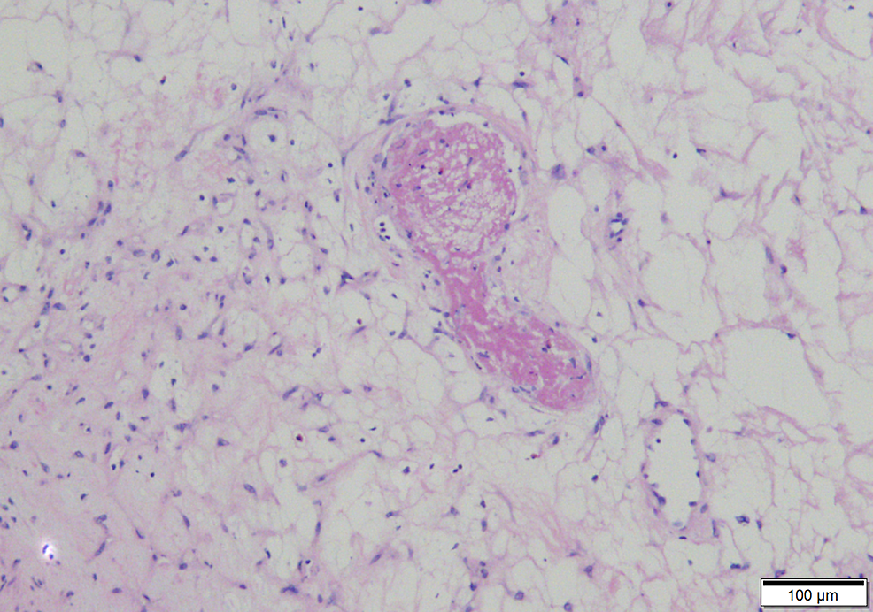 A-thrombus-lies-within-the-edematous-center-of-the-lesion,-a-characteristic-feature-(100x)