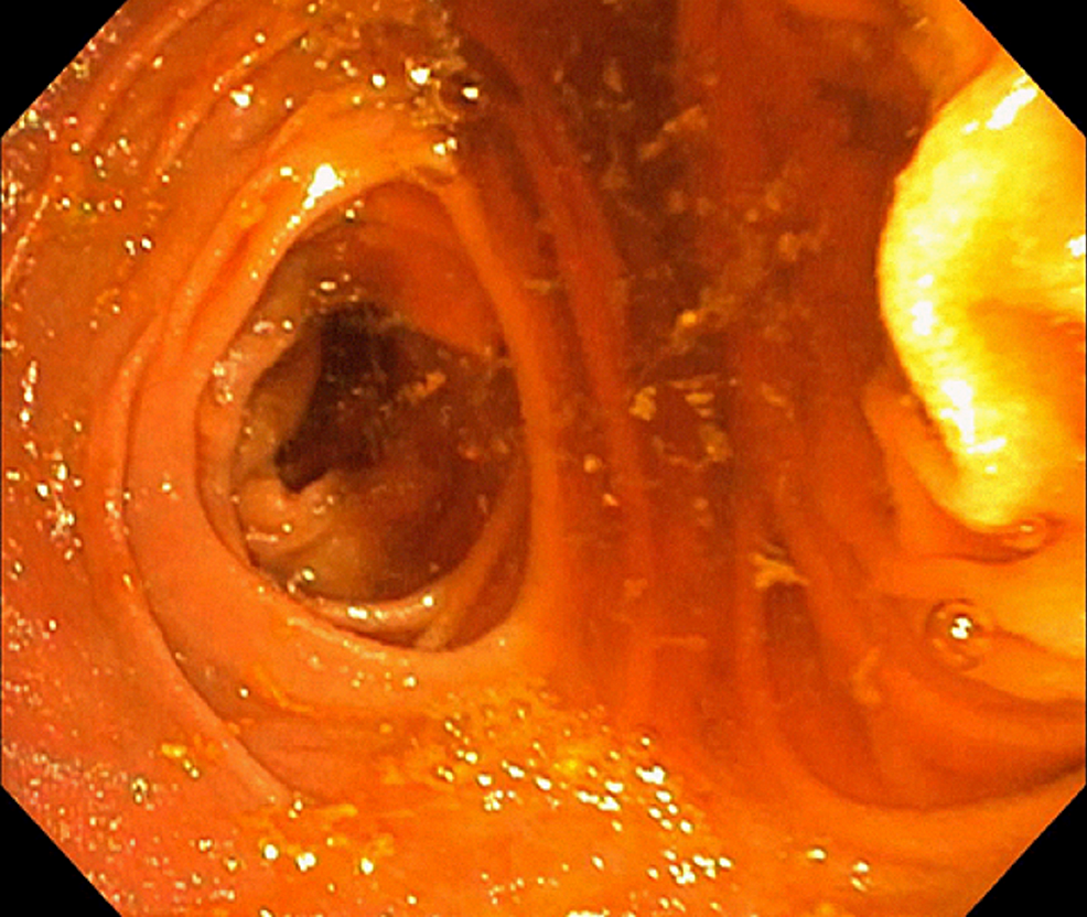 An-enteroscopic-view-of-the-gastric-lumen