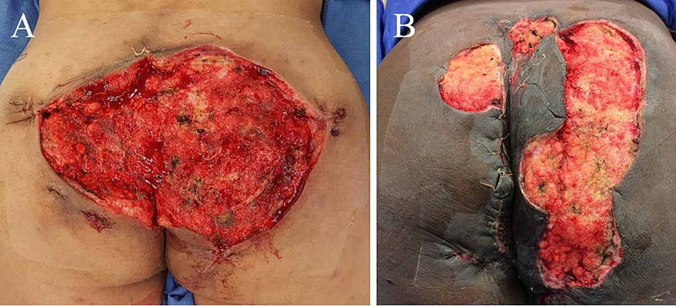 Upon-negative-pressure-wound-therapy-with-instillation-and-dwell-time-takedown-during-the-second-operation,-patients-demonstrated-healthy-pink-granulating-base-without-significant-fibrinous-tissue,-slough,-or-eschar.