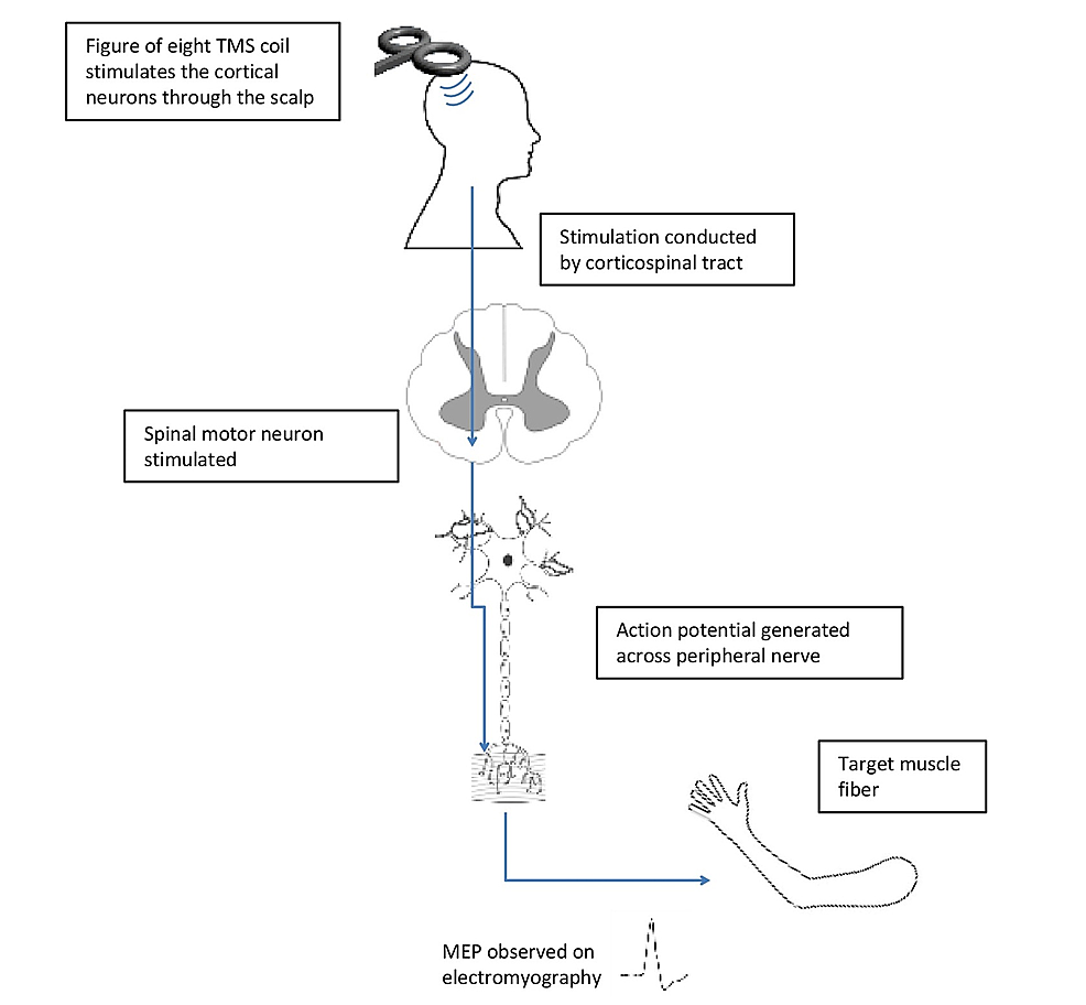 A-diagrammatic-representation-of-TMS-stimulation-of-the-motor-pathway-leading-to-muscle-contraction