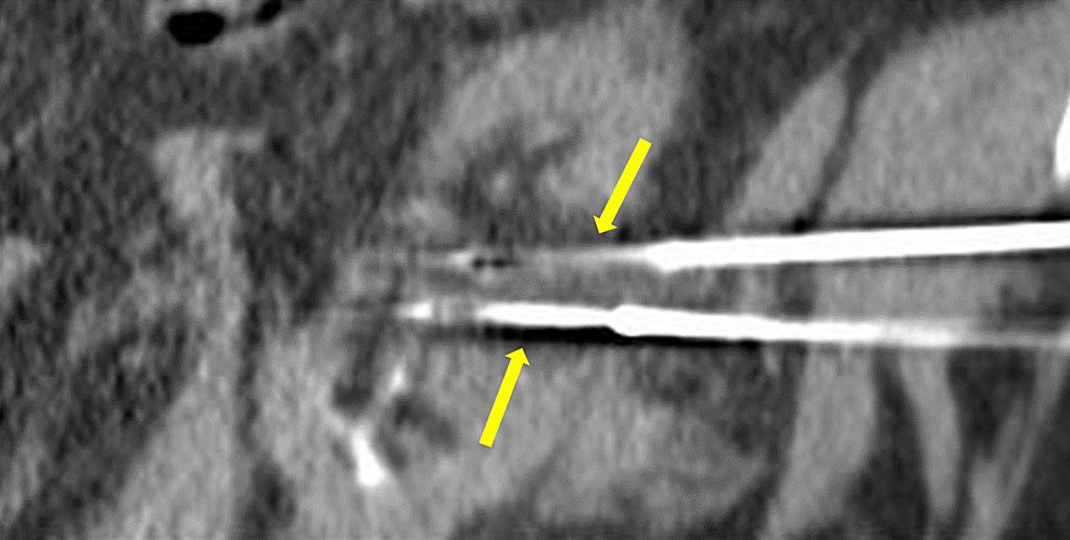 Pre-cryoablation-cryoprobes-positioned-in-the-center-of-the-tumor-(yellow-arrows).