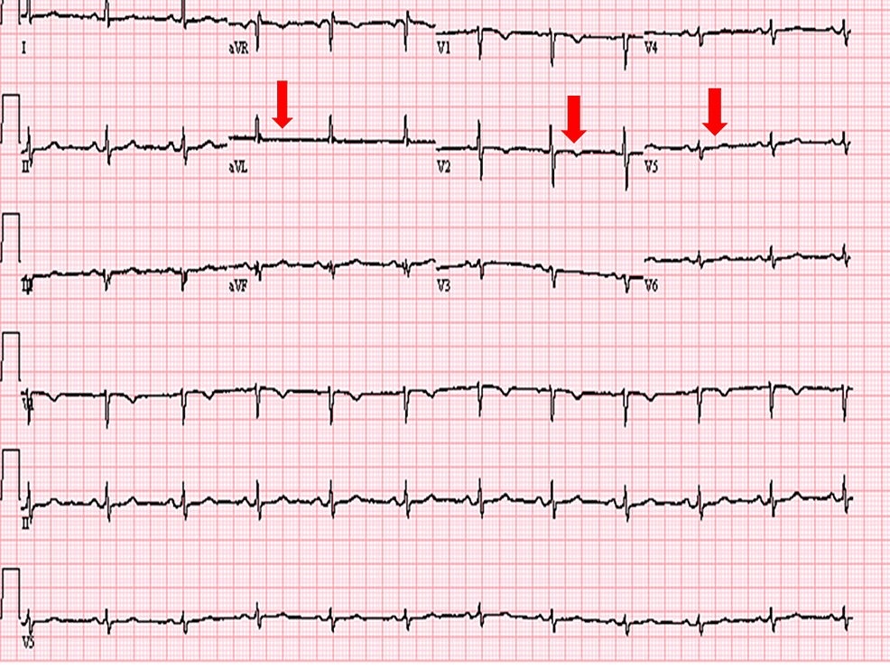 Electrocardiogram-showing-non-specific-ST-waves-changes-(Red-arrows).